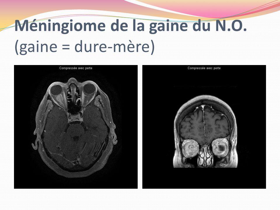Méningiome de la gaine du N.O. (gaine = dure-mère)