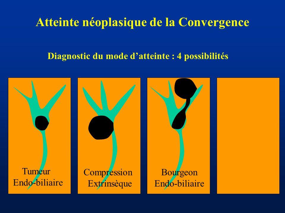 Atteinte néoplasique de la Convergence Tumeur Endo-biliaire Compression Extrinsèque Bourgeon Endo-biliaire Diagnostic du mode d'atteinte : 4 possibili