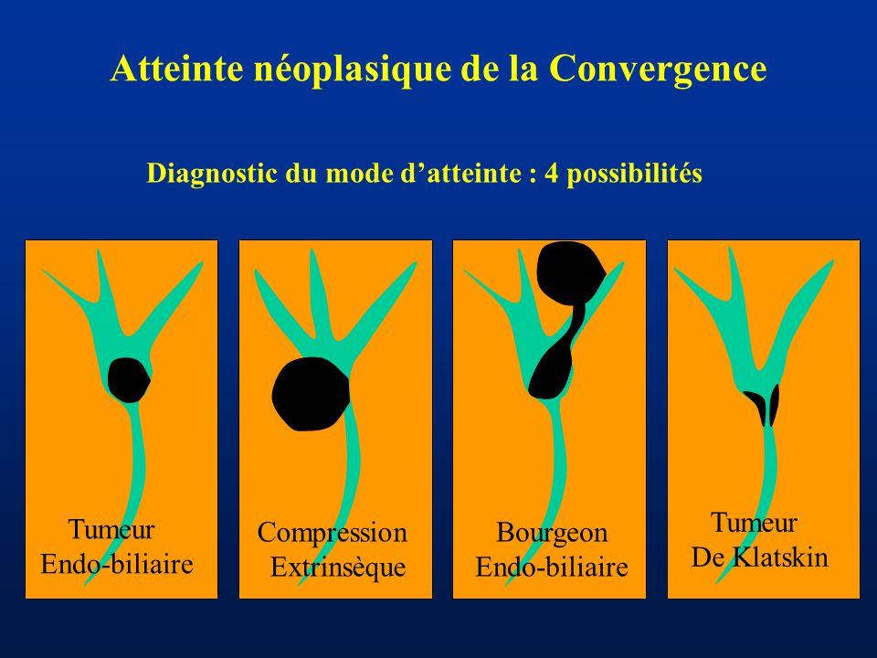 Atteinte néoplasique de la Convergence Tumeur Endo-biliaire Tumeur De Klatskin Compression Extrinsèque Bourgeon Endo-biliaire Diagnostic du mode d'att