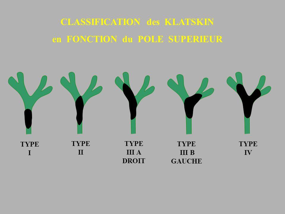 TYPE I TYPE II TYPE III A DROIT TYPE III B GAUCHE TYPE IV CLASSIFICATION des KLATSKIN en FONCTION du POLE SUPERIEUR