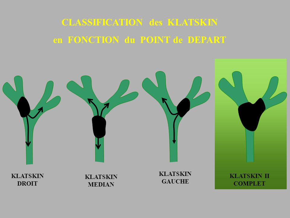 CLASSIFICATION des KLATSKIN en FONCTION du POINT de DEPART KLATSKIN MEDIAN KLATSKIN GAUCHE KLATSKIN DROIT KLATSKIN II COMPLET