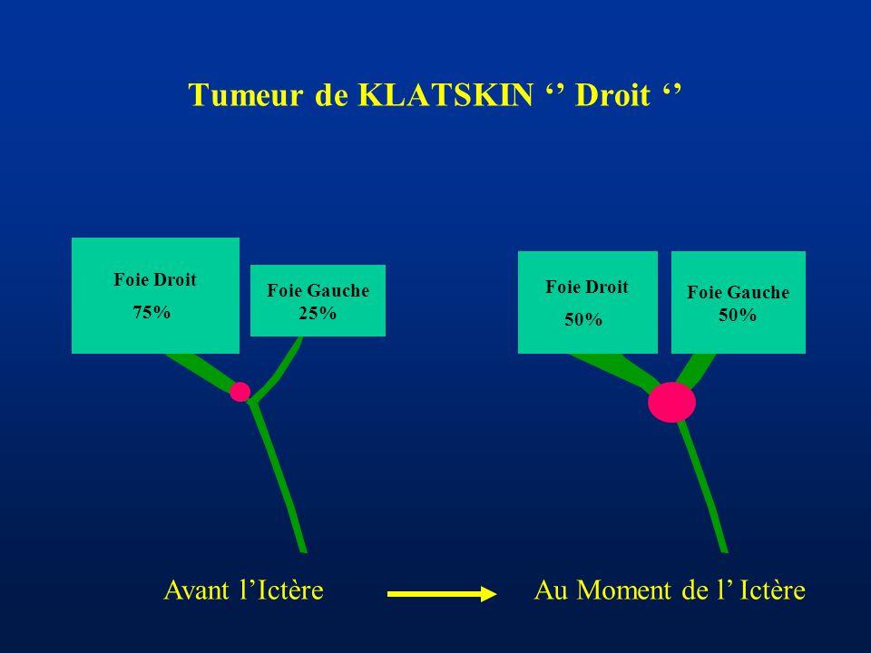 Tumeur de KLATSKIN '' Droit '' Foie Gauche 25% Foie Droit 75% Foie Gauche 50% Foie Droit 50% Avant l'IctèreAu Moment de l' Ictère