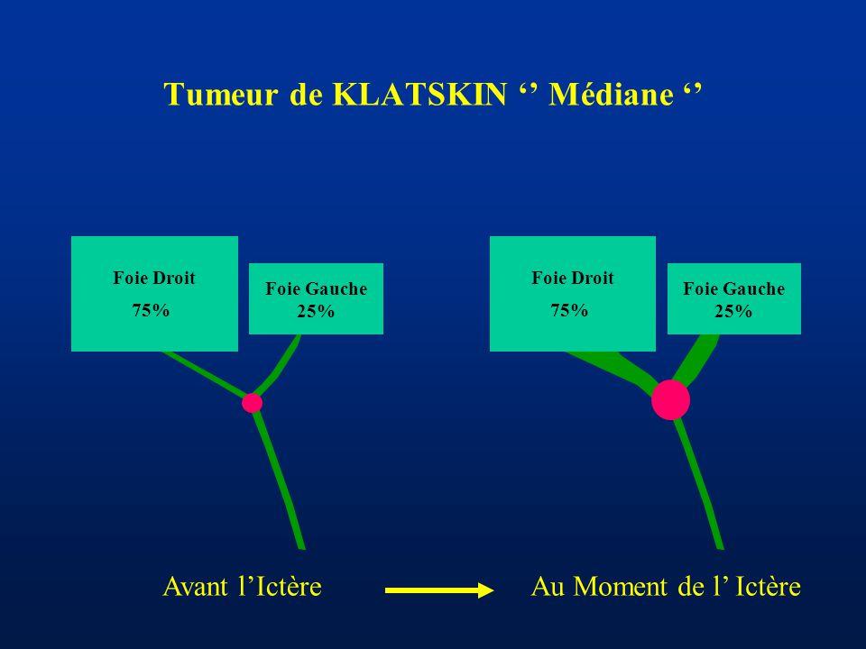 Tumeur de KLATSKIN '' Médiane '' Foie Gauche 25% Foie Droit 75% Foie Gauche 25% Foie Droit 75% Avant l'IctèreAu Moment de l' Ictère