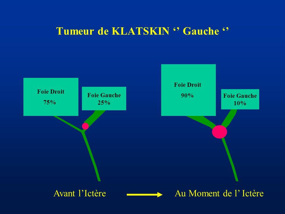 Tumeur de KLATSKIN '' Gauche '' Foie Gauche 25% Foie Droit 75% Foie Gauche 10% Foie Droit 90% Avant l'IctèreAu Moment de l' Ictère