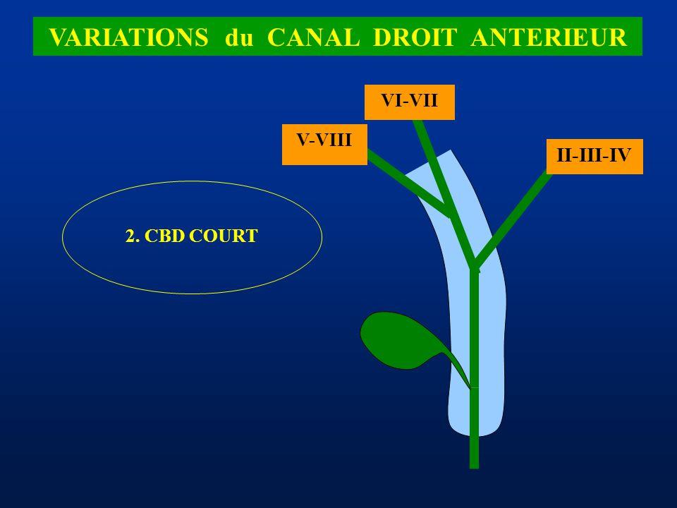 II-III-IV VI-VII 2. CBD COURT V-VIII VARIATIONS du CANAL DROIT ANTERIEUR