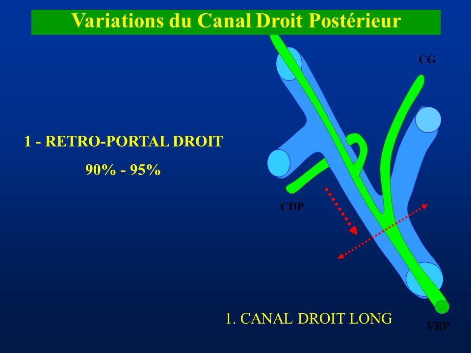 CDA CDP CG VBP Variations du Canal Droit Postérieur 1 - RETRO-PORTAL DROIT 90% - 95% 1. CANAL DROIT LONG