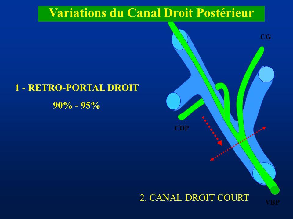 CDA CDP CG VBP Variations du Canal Droit Postérieur 1 - RETRO-PORTAL DROIT 90% - 95% 2. CANAL DROIT COURT