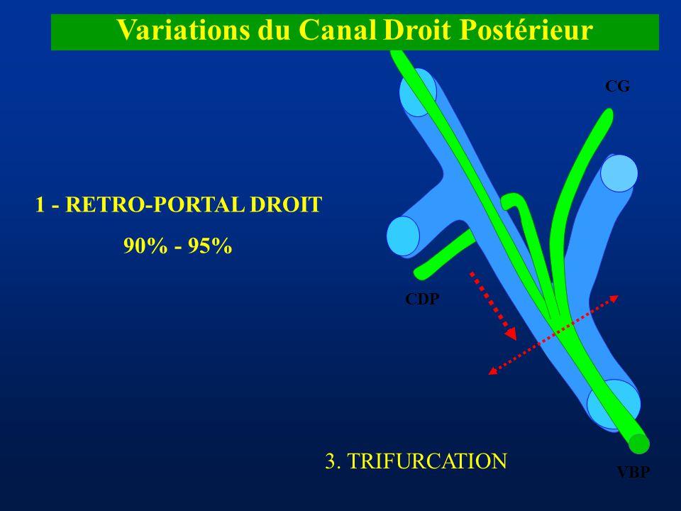 CDA CDP CG VBP Variations du Canal Droit Postérieur 1 - RETRO-PORTAL DROIT 90% - 95% 3. TRIFURCATION