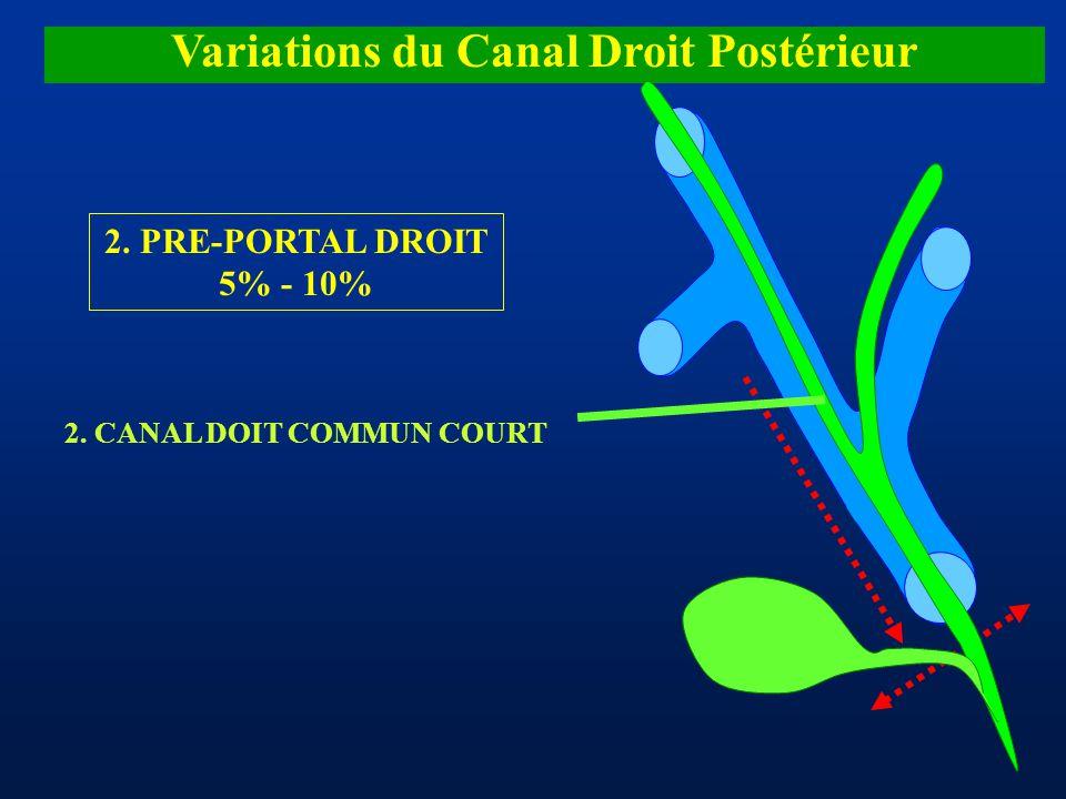 Variations du Canal Droit Postérieur 2. PRE-PORTAL DROIT 5% - 10% 2. CANAL DOIT COMMUN COURT