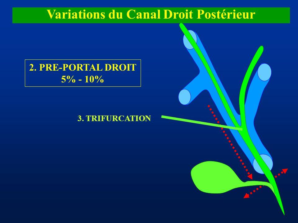 Variations du Canal Droit Postérieur 2. PRE-PORTAL DROIT 5% - 10% 3. TRIFURCATION