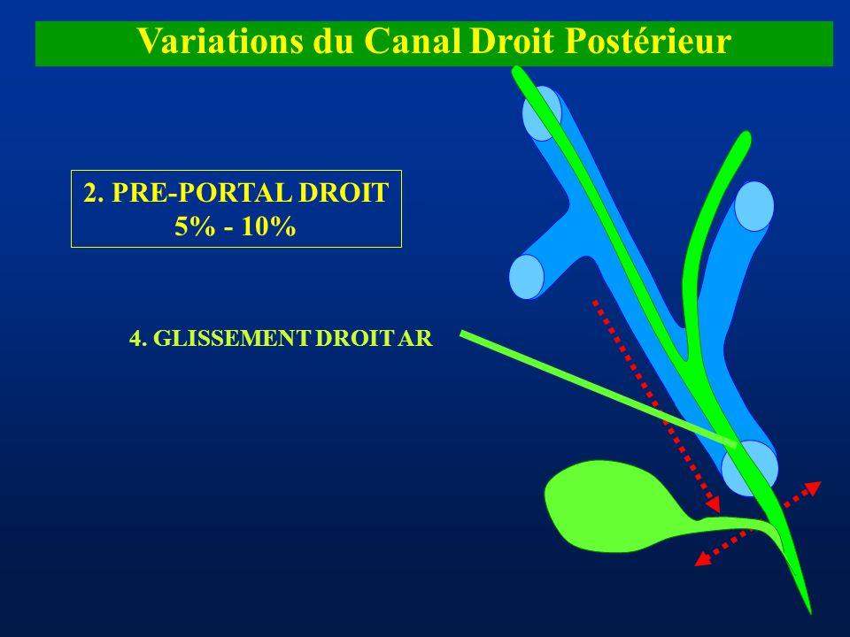 Variations du Canal Droit Postérieur 2. PRE-PORTAL DROIT 5% - 10% 4. GLISSEMENT DROIT AR