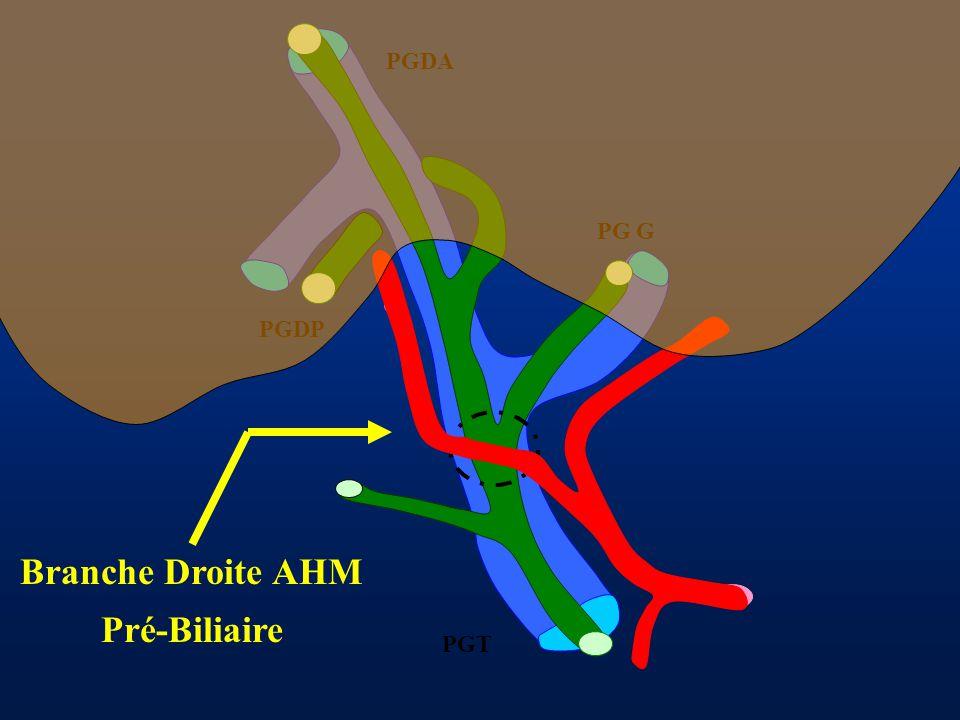 PGDA PG G PGDP PGT Branche Droite AHM Pré-Biliaire