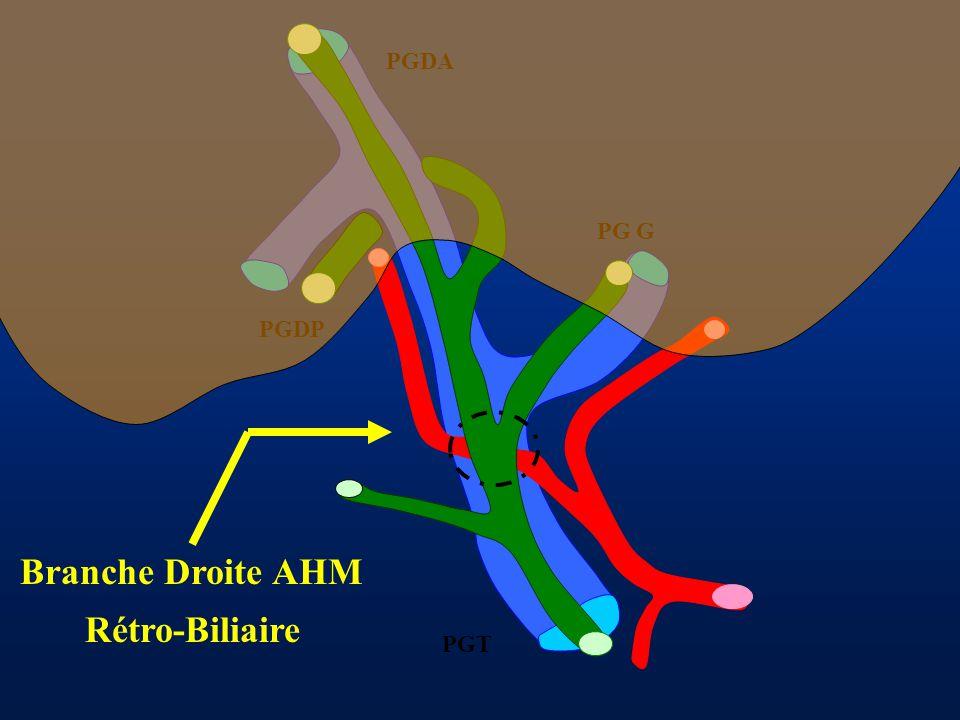 PGDA PG G PGDP PGT Branche Droite AHM Rétro-Biliaire