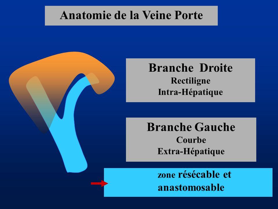 Anatomie de la Veine Porte Branche Droite Rectiligne Intra-Hépatique Branche Gauche Courbe Extra-Hépatique zone résécable et anastomosable