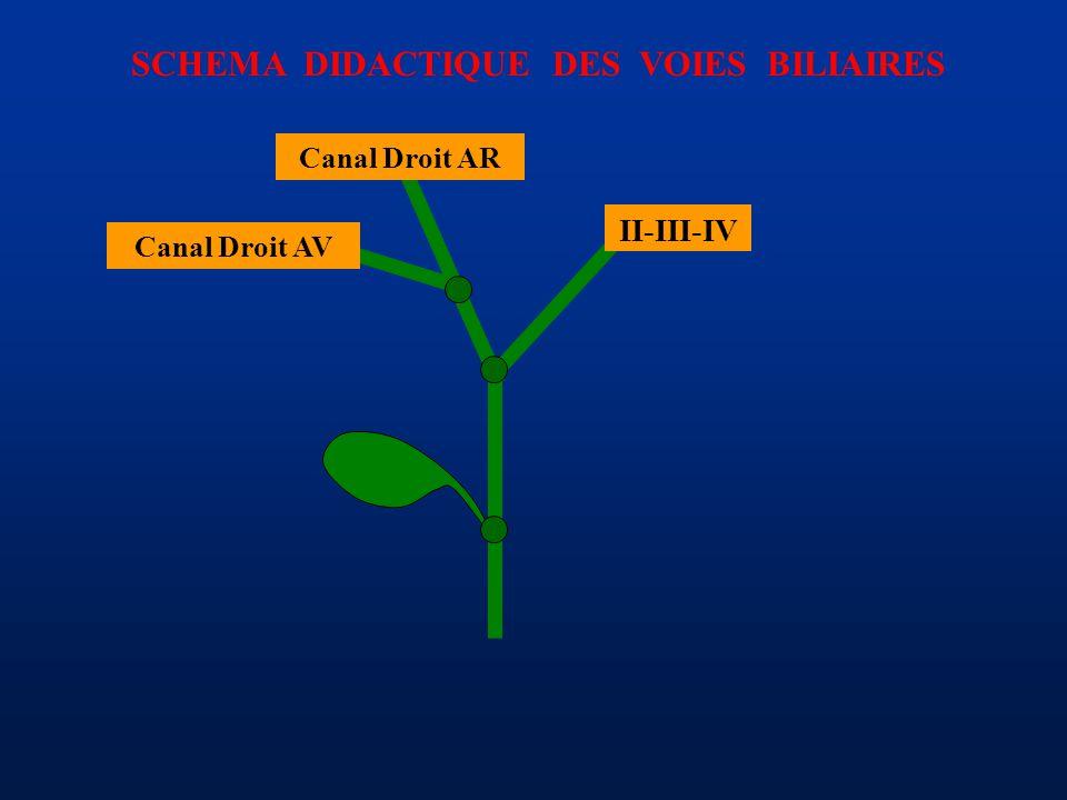 SCHEMA DIDACTIQUE DES VOIES BILIAIRES II-III-IV Canal Droit AR Canal Droit AV