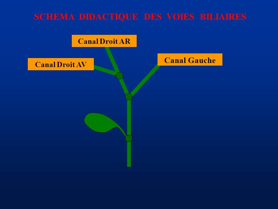 SCHEMA DIDACTIQUE DES VOIES BILIAIRES Canal Gauche Canal Droit AR Canal Droit AV