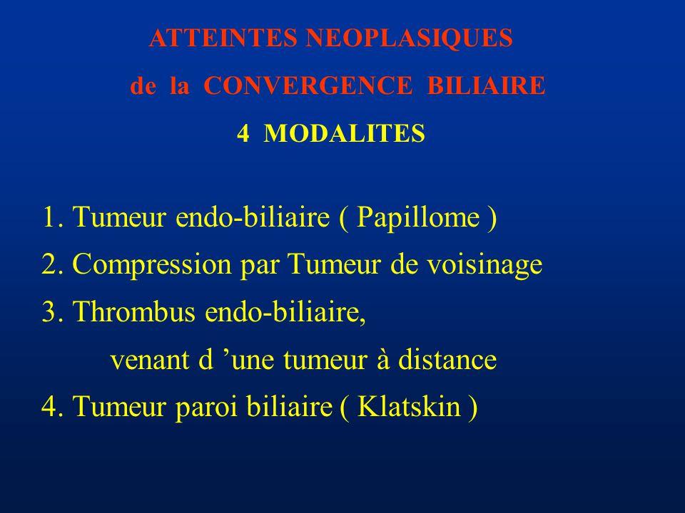ATTEINTES NEOPLASIQUES de la CONVERGENCE BILIAIRE 4 MODALITES 1. Tumeur endo-biliaire ( Papillome ) 2. Compression par Tumeur de voisinage 3. Thrombus