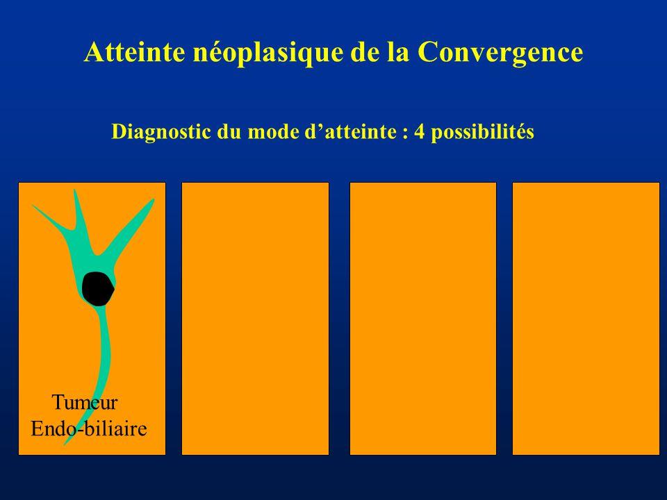 Atteinte néoplasique de la Convergence Tumeur Endo-biliaire Diagnostic du mode d'atteinte : 4 possibilités