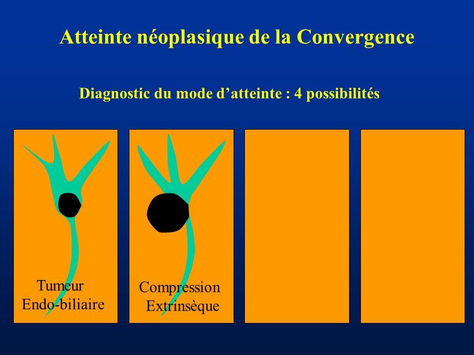 Atteinte néoplasique de la Convergence Tumeur Endo-biliaire Compression Extrinsèque Diagnostic du mode d'atteinte : 4 possibilités