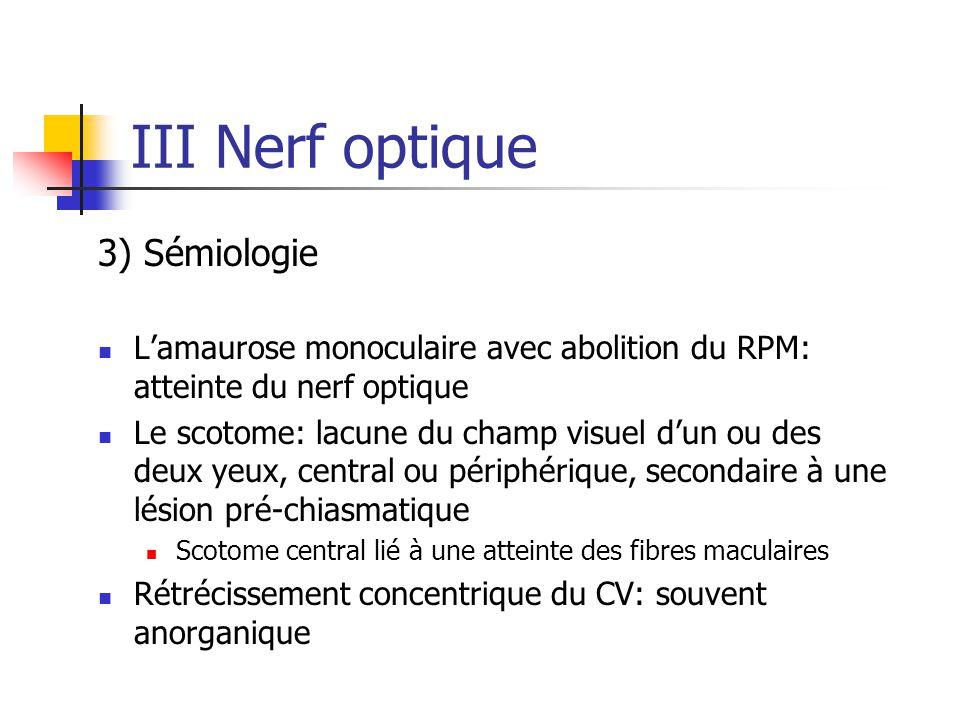III Nerf optique 3) Sémiologie L'amaurose monoculaire avec abolition du RPM: atteinte du nerf optique Le scotome: lacune du champ visuel d'un ou des d
