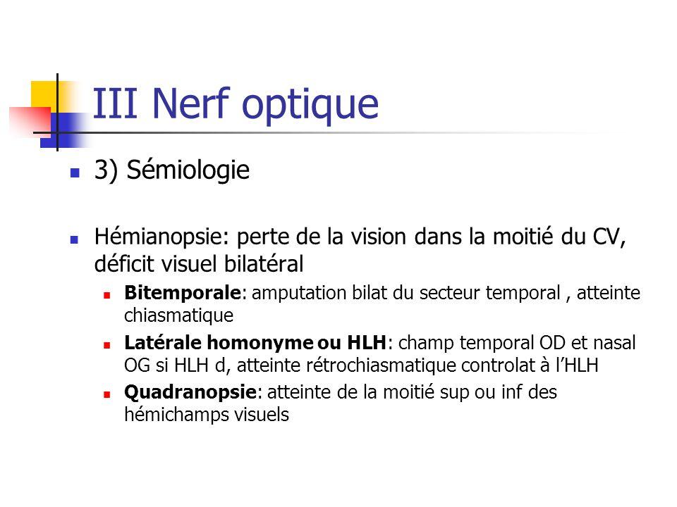 III Nerf optique 3) Sémiologie Hémianopsie: perte de la vision dans la moitié du CV, déficit visuel bilatéral Bitemporale: amputation bilat du secteur