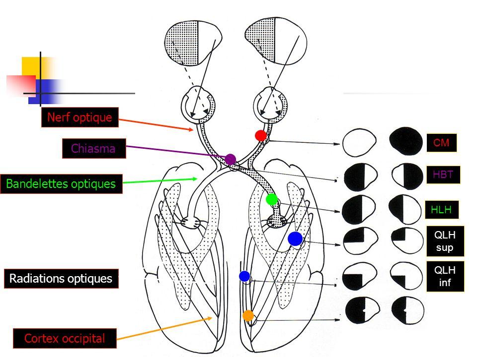 CM Nerf optique HBT Chiasma HLH Bandelettes optiques QLH sup Radiations optiques QLH inf Cortex occipital