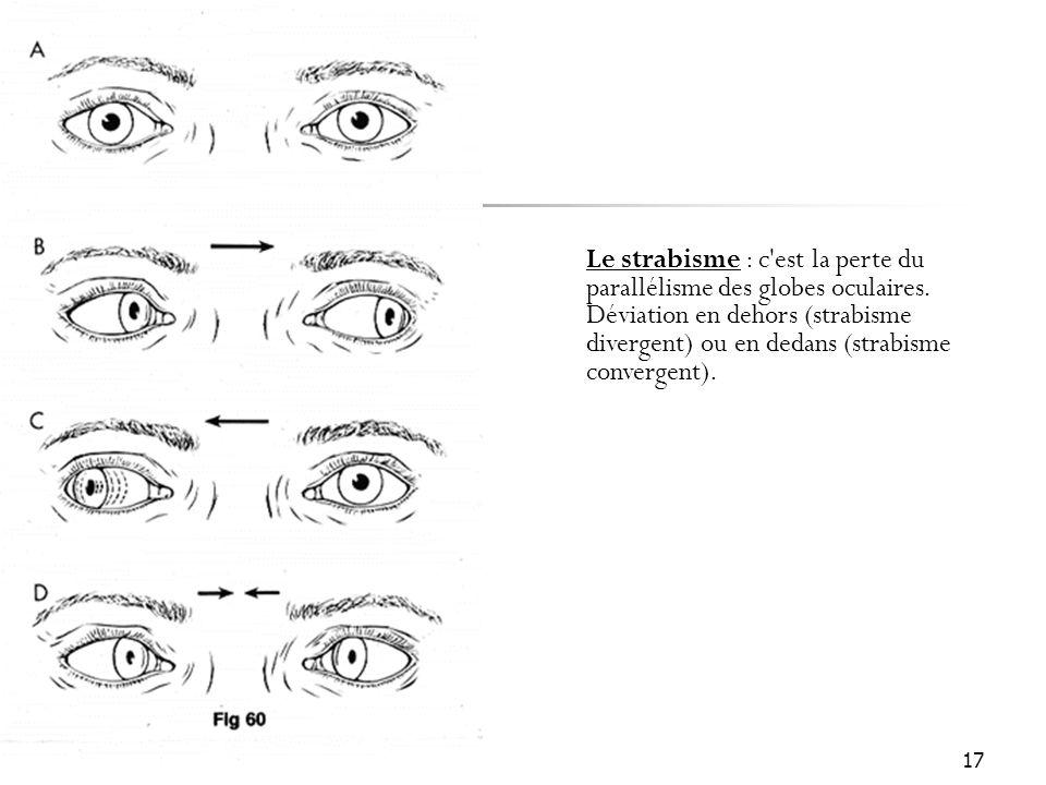 17 Le strabisme : c'est la perte du parallélisme des globes oculaires. Déviation en dehors (strabisme divergent) ou en dedans (strabisme convergent).