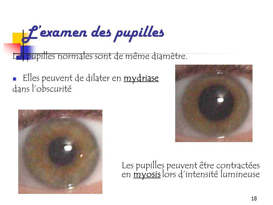 18 L'examen des pupilles Les pupilles normales sont de même diamètre. Elles peuvent de dilater en mydriase dans l'obscurité Les pupilles peuvent être