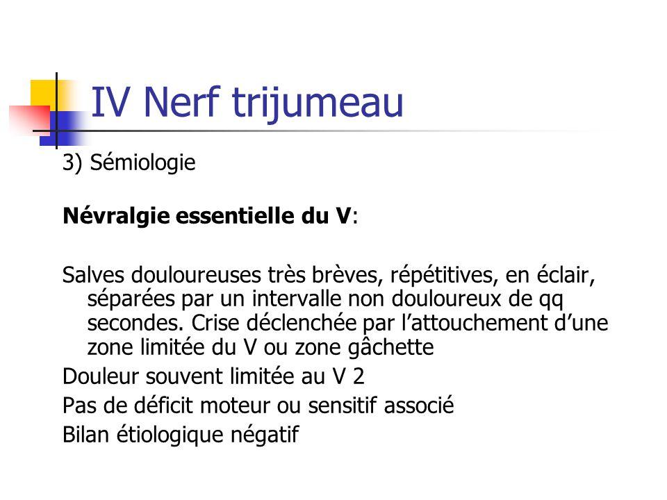 IV Nerf trijumeau 3) Sémiologie Névralgie essentielle du V: Salves douloureuses très brèves, répétitives, en éclair, séparées par un intervalle non do