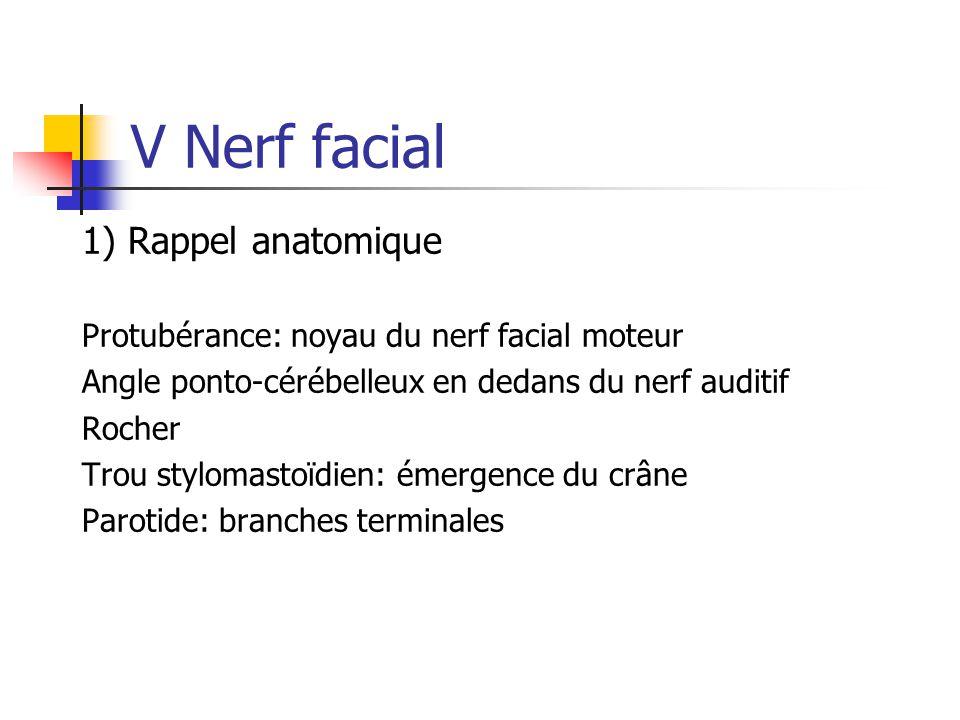 V Nerf facial 1) Rappel anatomique Protubérance: noyau du nerf facial moteur Angle ponto-cérébelleux en dedans du nerf auditif Rocher Trou stylomastoï