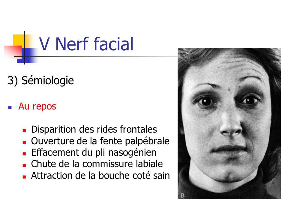 V Nerf facial 3) Sémiologie Au repos Disparition des rides frontales Ouverture de la fente palpébrale Effacement du pli nasogénien Chute de la commiss