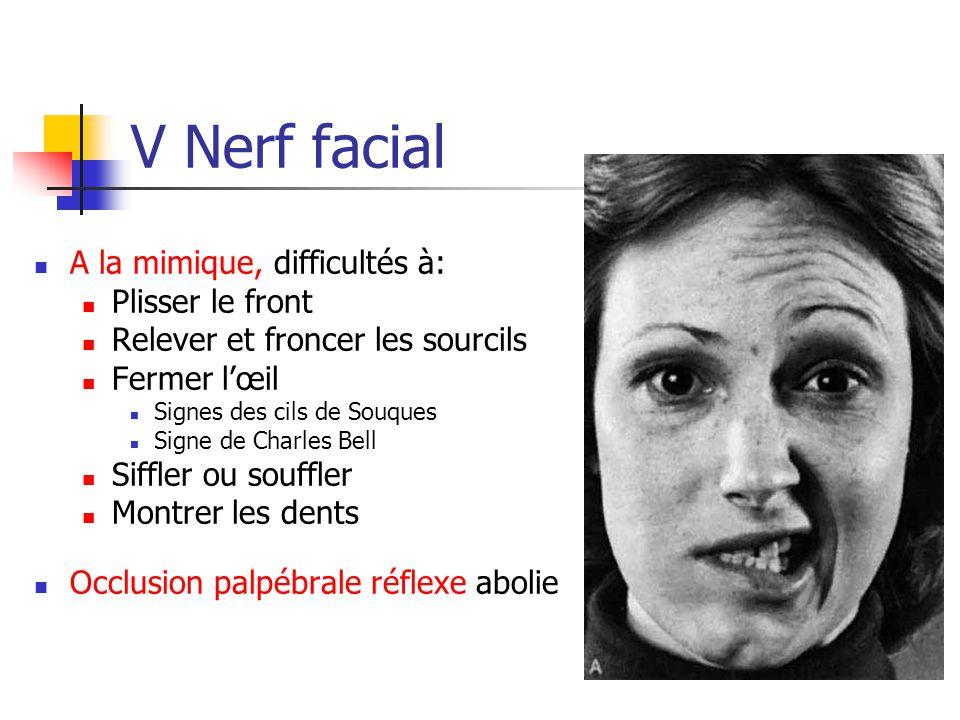 V Nerf facial A la mimique, difficultés à: Plisser le front Relever et froncer les sourcils Fermer l'œil Signes des cils de Souques Signe de Charles B