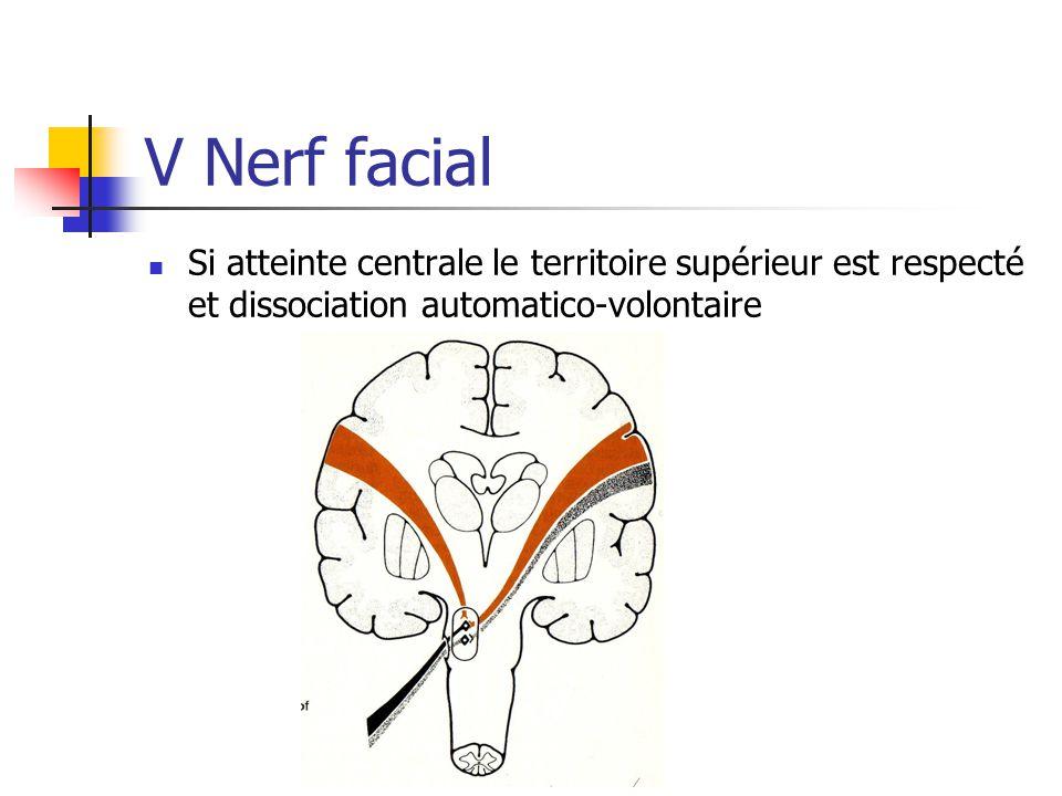 V Nerf facial Si atteinte centrale le territoire supérieur est respecté et dissociation automatico-volontaire