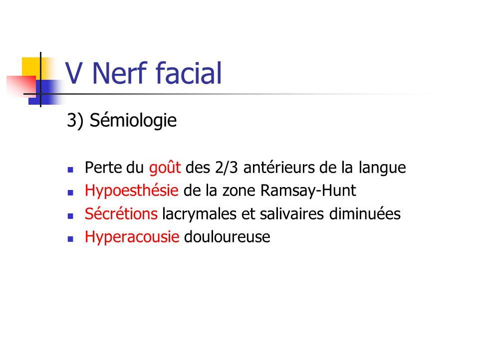 V Nerf facial 3) Sémiologie Perte du goût des 2/3 antérieurs de la langue Hypoesthésie de la zone Ramsay-Hunt Sécrétions lacrymales et salivaires dimi