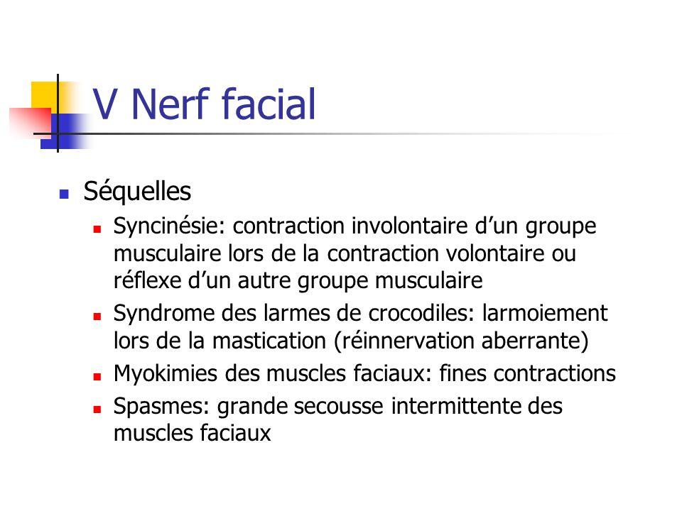 V Nerf facial Séquelles Syncinésie: contraction involontaire d'un groupe musculaire lors de la contraction volontaire ou réflexe d'un autre groupe mus