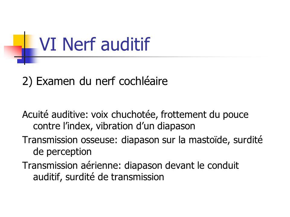 VI Nerf auditif 2) Examen du nerf cochléaire Acuité auditive: voix chuchotée, frottement du pouce contre l'index, vibration d'un diapason Transmission