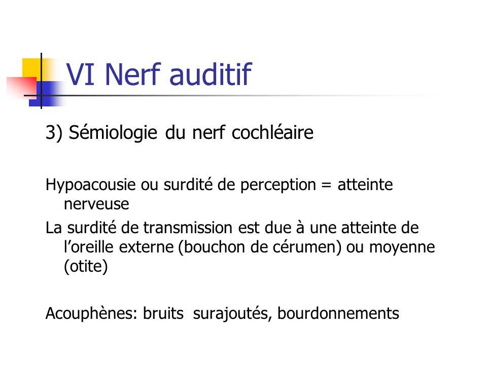 VI Nerf auditif 3) Sémiologie du nerf cochléaire Hypoacousie ou surdité de perception = atteinte nerveuse La surdité de transmission est due à une att
