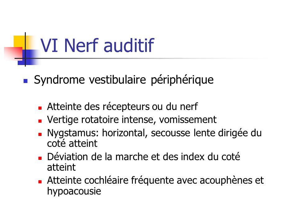 VI Nerf auditif Syndrome vestibulaire périphérique Atteinte des récepteurs ou du nerf Vertige rotatoire intense, vomissement Nygstamus: horizontal, se