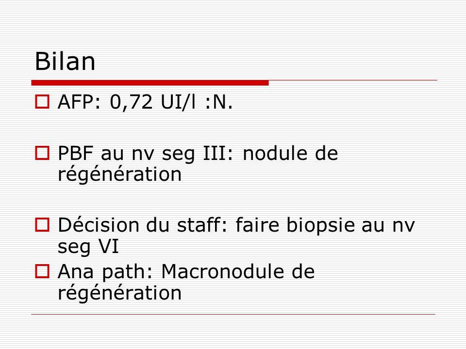 Bilan  AFP: 0,72 UI/l :N.  PBF au nv seg III: nodule de régénération  Décision du staff: faire biopsie au nv seg VI  Ana path: Macronodule de régé
