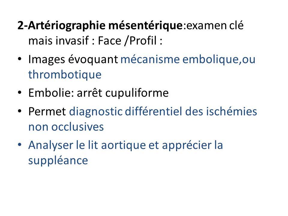 2-Artériographie mésentérique:examen clé mais invasif : Face /Profil : Images évoquant mécanisme embolique,ou thrombotique Embolie: arrêt cupuliforme