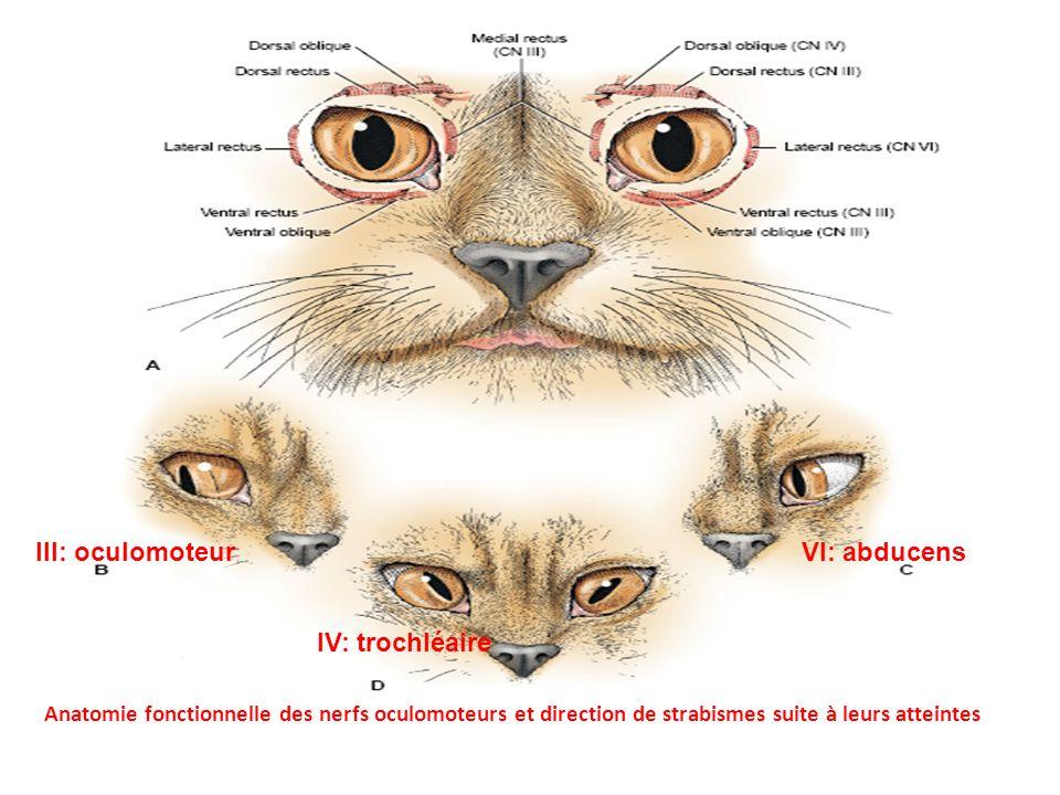 Anatomie fonctionnelle des nerfs oculomoteurs et direction de strabismes suite à leurs atteintes III: oculomoteurVI: abducens IV: trochléaire