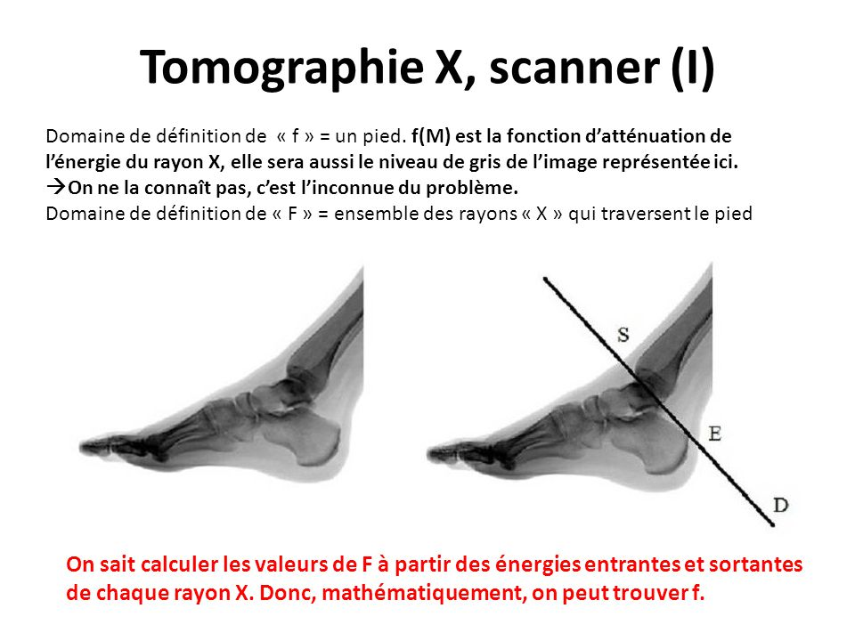 Tomographie X, scanner (I) On sait calculer les valeurs de F à partir des énergies entrantes et sortantes de chaque rayon X. Donc, mathématiquement, o