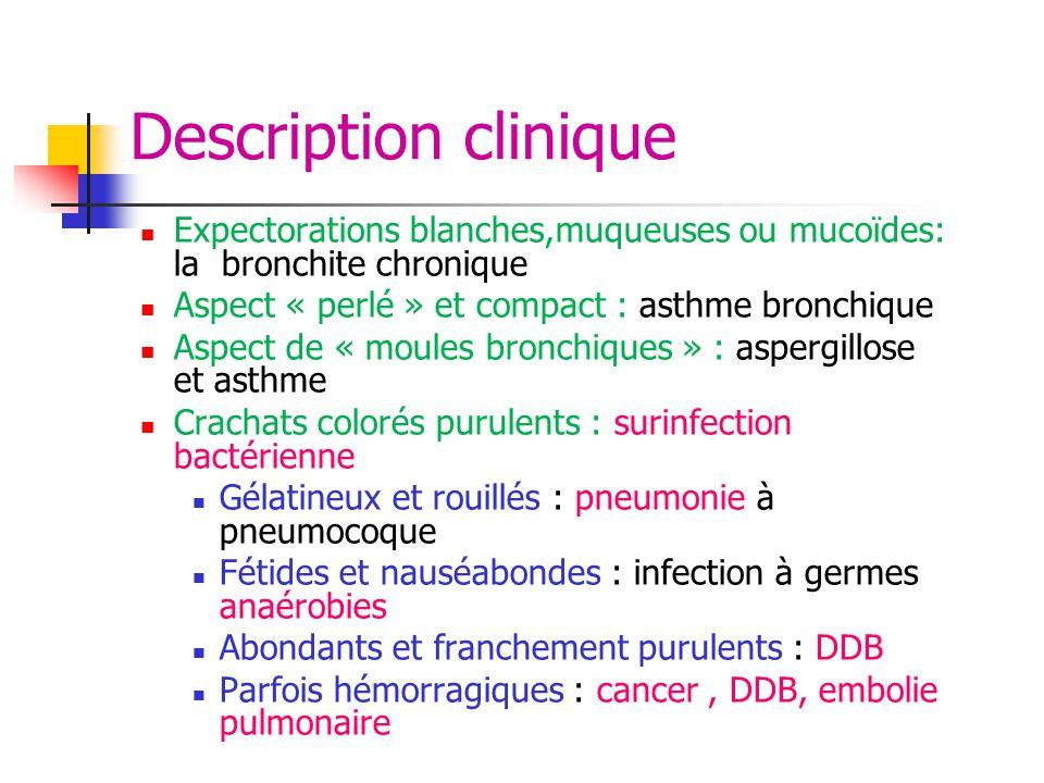 Description clinique Expectorations blanches,muqueuses ou mucoïdes: la bronchite chronique Aspect « perlé » et compact : asthme bronchique Aspect de «