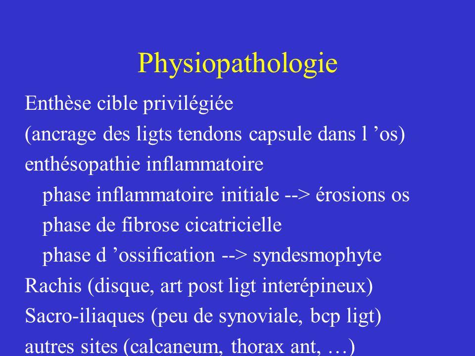 Spondylarthrite ankylosante Traitement lutter ctre Douleur et inflammation prévenir enraidissement pallier au handicap AINS ++++ choix variable, parfois au long cours Anti COX 2 (réduction du risque digestif) (phenylbutazone)