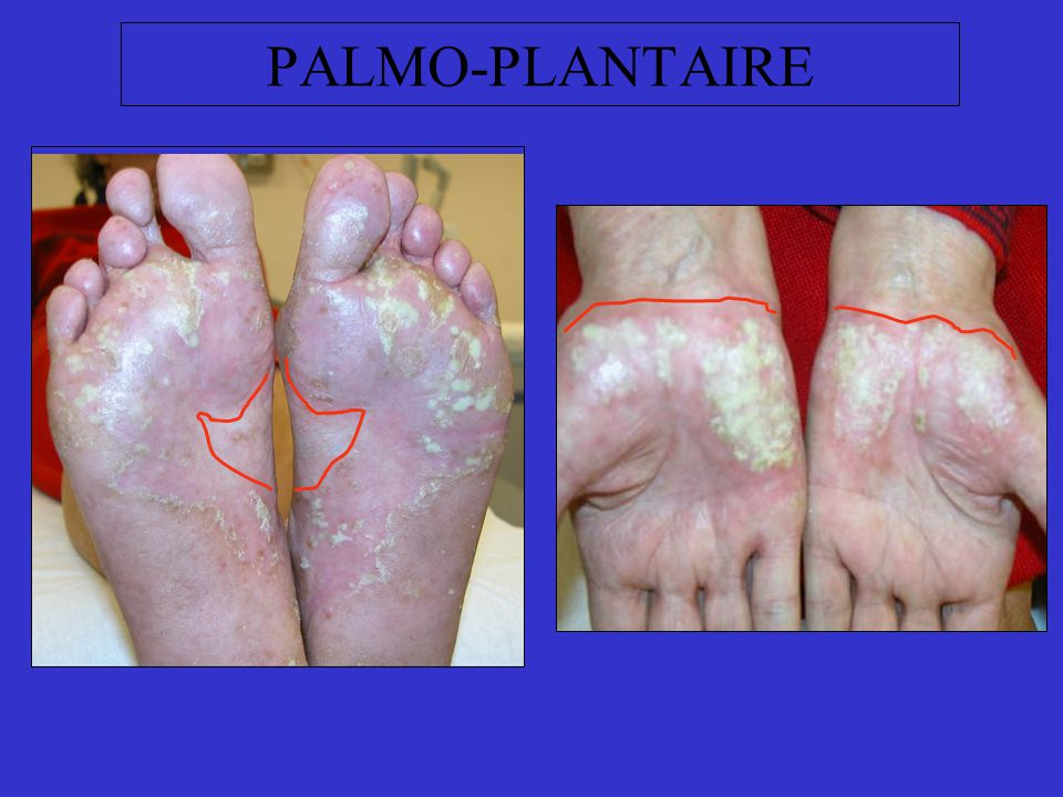 PALMO-PLANTAIRE