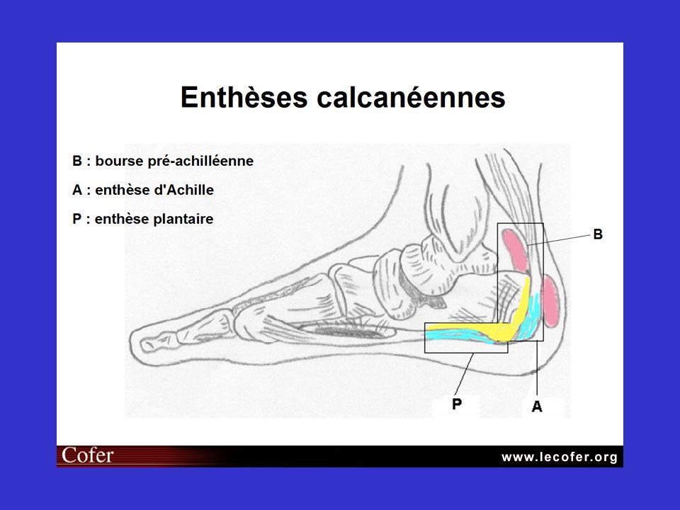 Rhumatisme Psoriasique Dr Brocq Olivier Service de rhumatologie Pr Euller Ziegler
