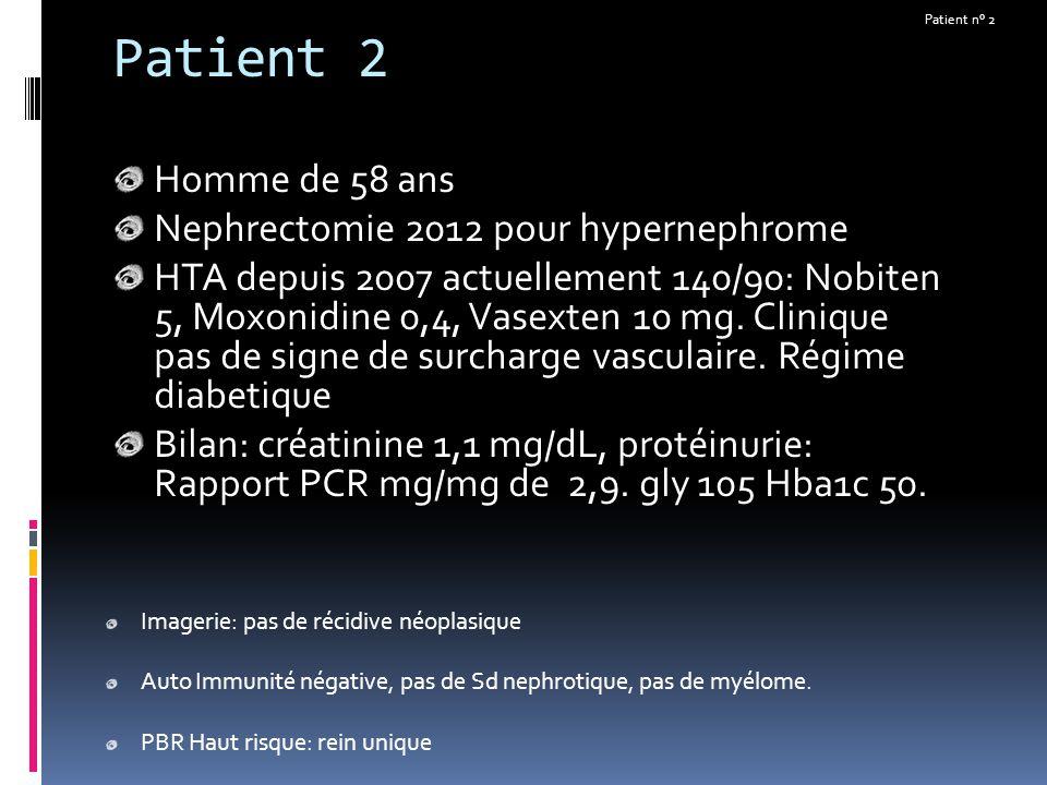 Patient 2 Homme de 58 ans Nephrectomie 2012 pour hypernephrome HTA depuis 2007 actuellement 140/90: Nobiten 5, Moxonidine 0,4, Vasexten 10 mg. Cliniqu