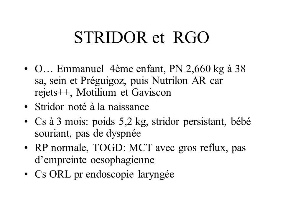 STRIDOR et RGO O… Emmanuel 4ème enfant, PN 2,660 kg à 38 sa, sein et Préguigoz, puis Nutrilon AR car rejets++, Motilium et Gaviscon Stridor noté à la