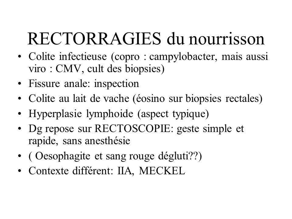 RECTORRAGIES du nourrisson Colite infectieuse (copro : campylobacter, mais aussi viro : CMV, cult des biopsies) Fissure anale: inspection Colite au la