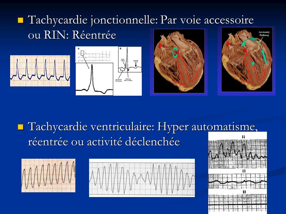 Tachycardie jonctionnelle: Par voie accessoire ou RIN: Réentrée Tachycardie jonctionnelle: Par voie accessoire ou RIN: Réentrée Tachycardie ventriculaire: Hyper automatisme, réentrée ou activité déclenchée Tachycardie ventriculaire: Hyper automatisme, réentrée ou activité déclenchée